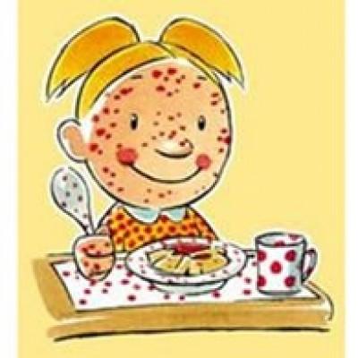 Historia de Gabriela y sus muchas alergias alimentarias